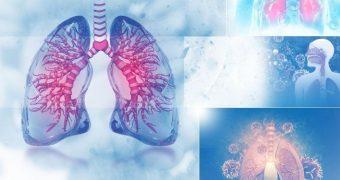 Dureri în piept, respiraţie dificilă? De vină poate fi inflamaţia plămânilor