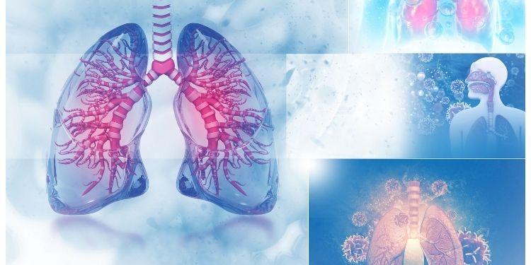 inflamaţia plămânilor, durere în piept, dificultăţi de respiraţie, simptomele inflamaţiei plămânilor, cauzele inflamaţiei plămânilor, tratamentul inflamaţiei plămânilor,