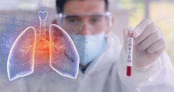 De ce pneumonia COVID-19 este mai gravă decât alte forme de pneumonie