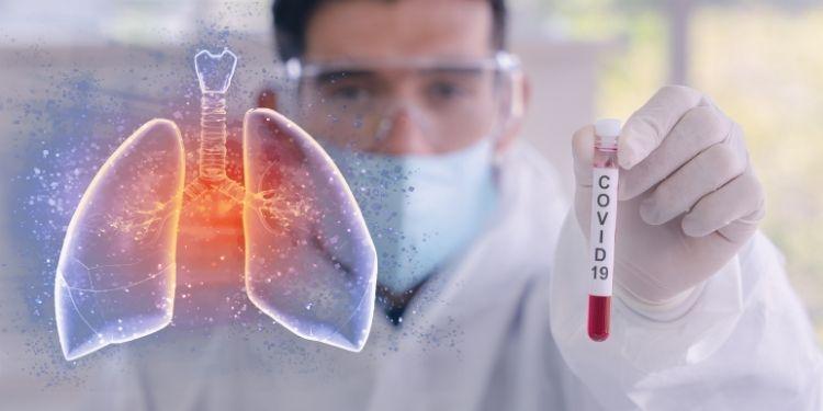 pneumonia COVID-19, pneumonie COVID-19, pneumonia, COVID-19, celulele imunitare, plămâni,
