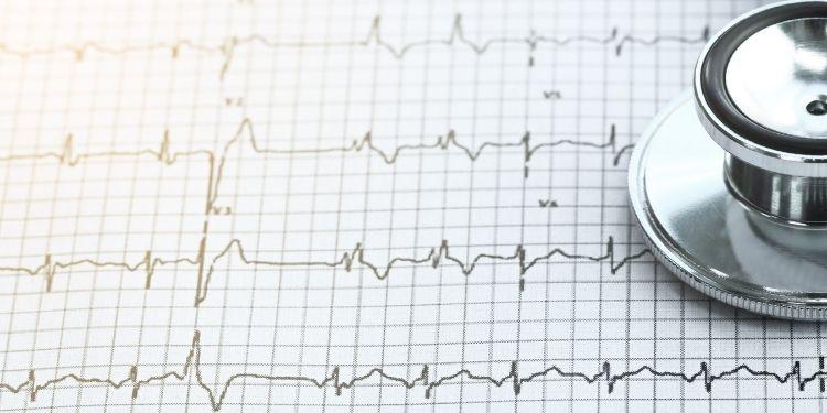 alimente prăjite, riscul de boli cardiovasculare, mortalitate cardiovasculară, mortalitate, evenimente cardiovasculare, atacuri de cord, accidente vasculare cerebrale,