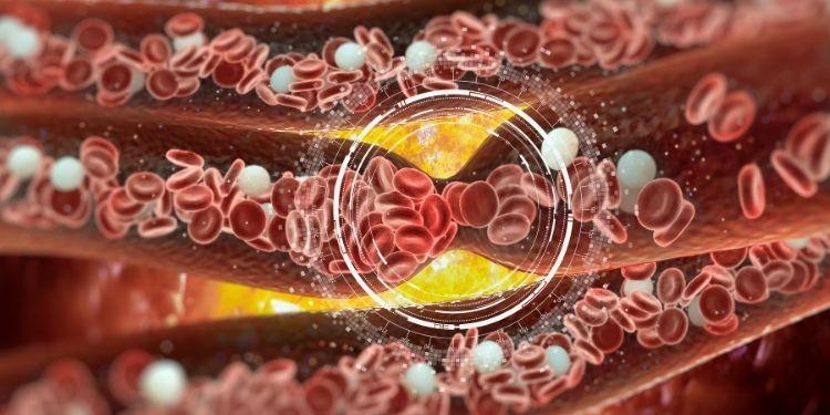 cheaguri de sânge, cancer pulmonar, embolism pulmonar, tromboza venoasă profundă, plămâni,