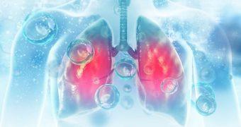 Legătura dintre cheagurile de sânge şi cancerul pulmonar