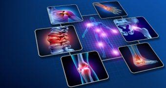 Ce trebuie să ştii despre artrita reumatoidă (reumatism)
