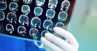 COVID-19 creşte riscul de accident vascular cerebral