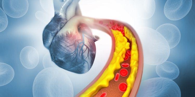 plăci ateromatoase, ateroscleroza, obezitate, dislipidemie, boli cardiovasculare, fumat,