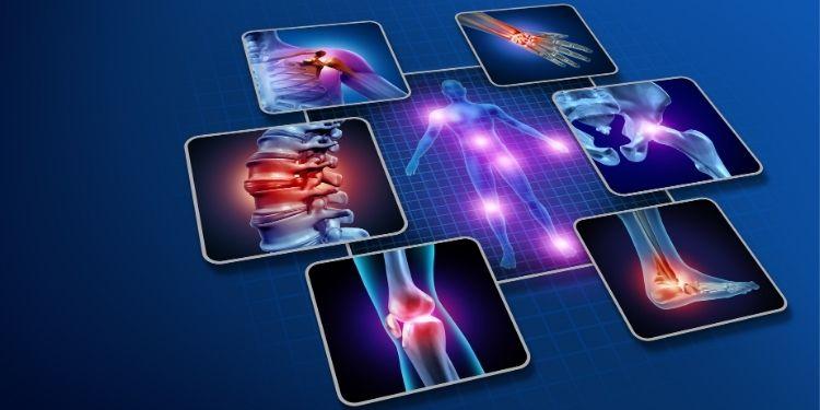 artrită, Naturalis, ArtroSuport, tratament artrita, reumatism, tratament reumatism,
