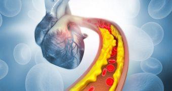 Factori-cheie pentru prevenirea aterosclerozei