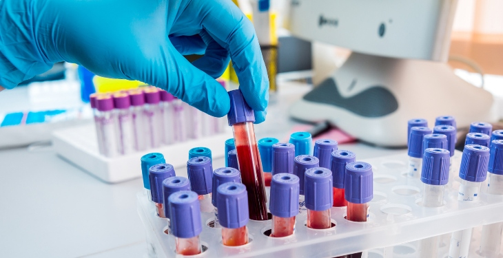 Depresia ar putea fi depistată prin intermediul analizelor de sânge