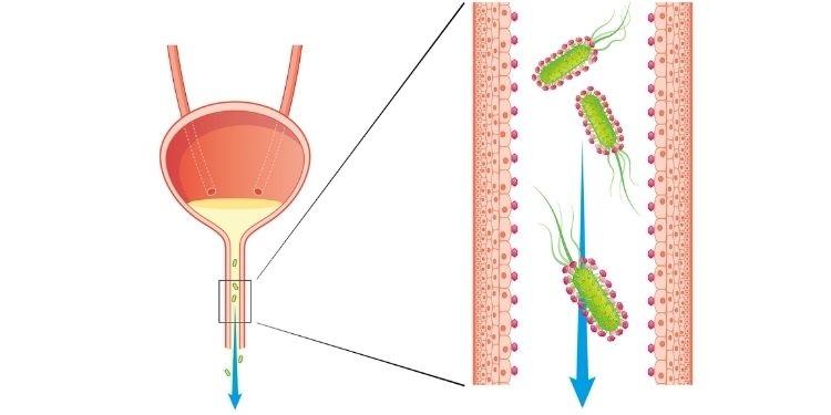 infecții urinare, Femannose N, D-manoză, antibiotice,