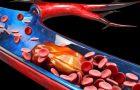 Cheagurile de sânge: ce trebuie să ştiţi