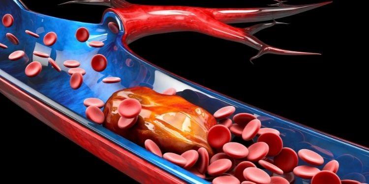 tromboza, tromboză, tromboza venoasă, sânge, cheag,