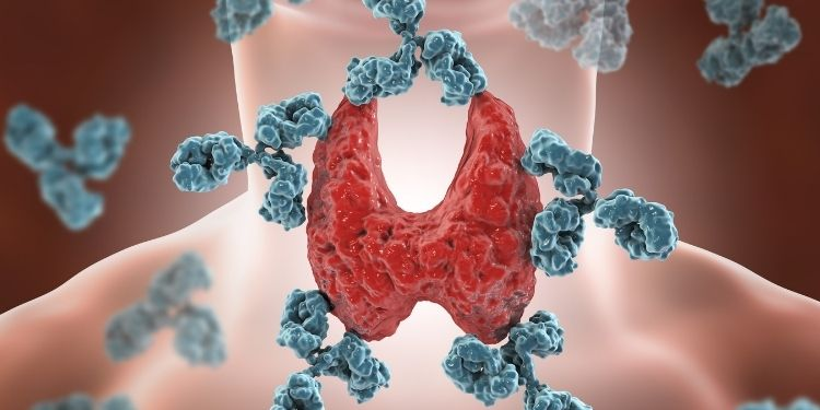 boala celiacă, hormoni, hormoni tiroidieni, sistemul imunitar, bolile autoimune, sistemul imunitar,