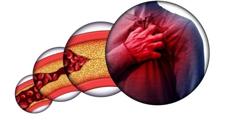 colesterolul crescut, LDL-colesterol, HDL-colesterol, colesterol, ateroame, plăci de colesterol, tensiunea arterială, AVC,